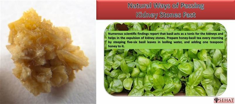 The Best Kidney Stone Home Remedy